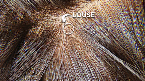 Close up picture of the Louse in hair